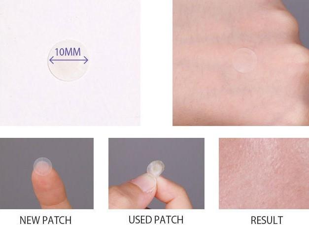 Чудо-пластыри для лечения угрей и воспалений Mizon Bye Bye Pimple Patch 24шт.